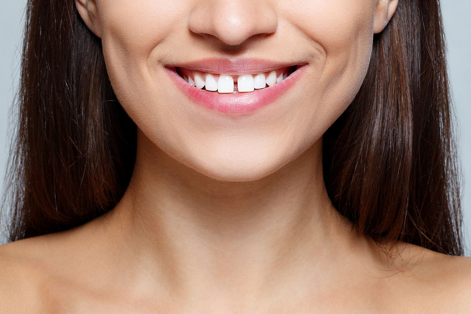 Fix A Tooth Gap: How To Treat Diastema